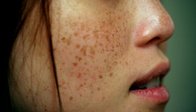 When Freckles Stop Being Cute